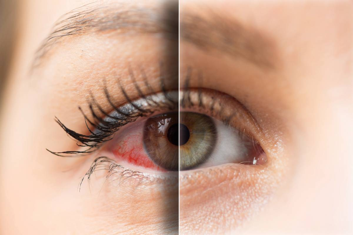 Eyes Like The Sahara How To Stop Dry Eyes When You Wear Contacts Lenspure