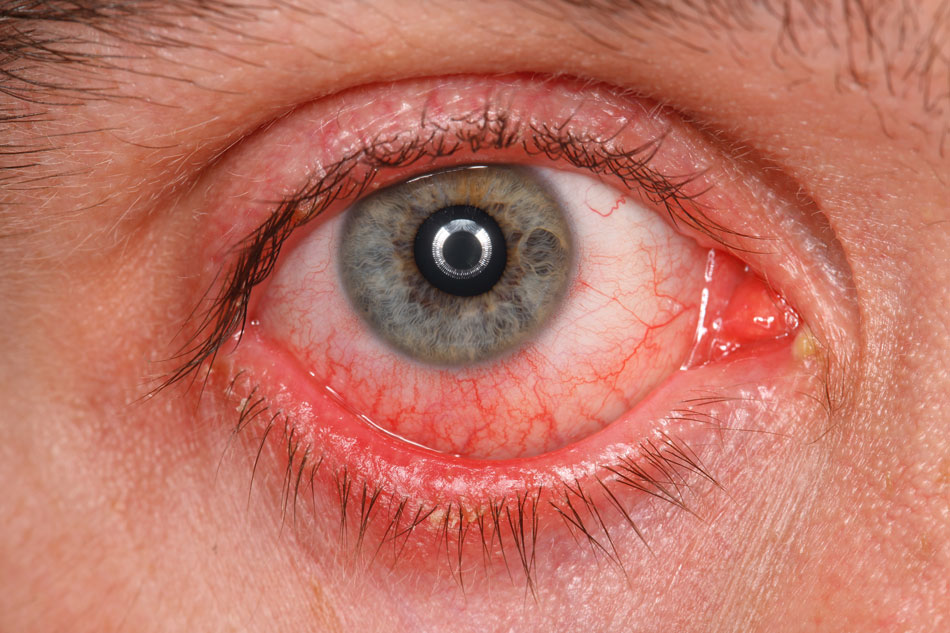 Close-up of irritated red eye with pus