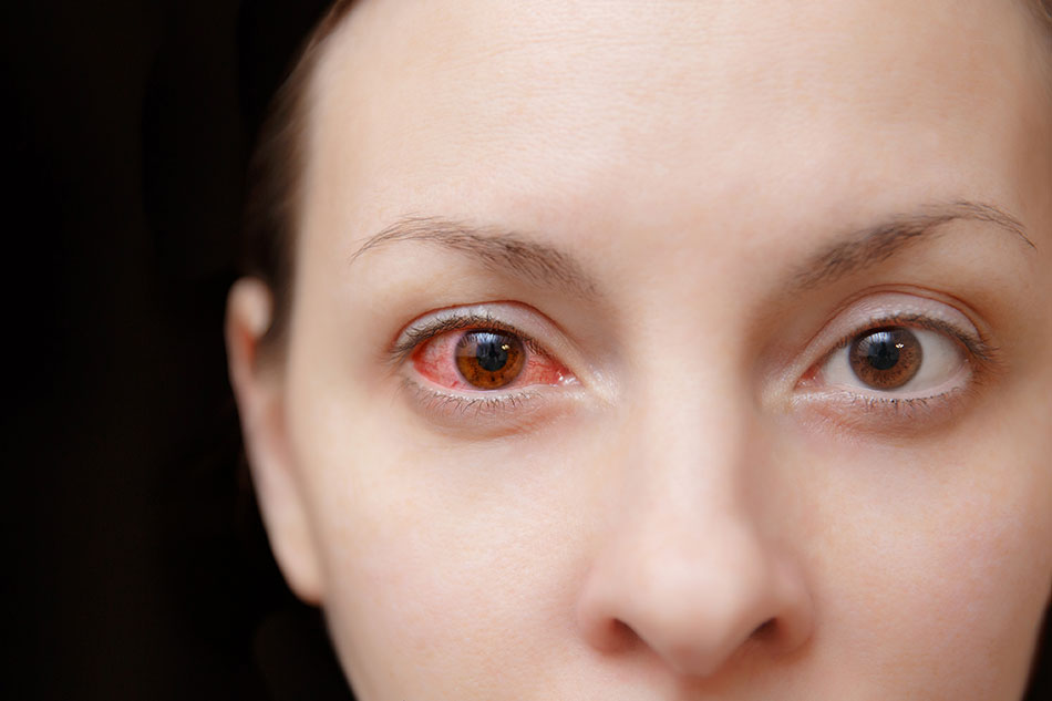 Is It Possible for You to Save a Dried out Contact Lens